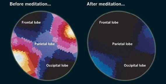 MEDITACION-calming-mind-brain-waves